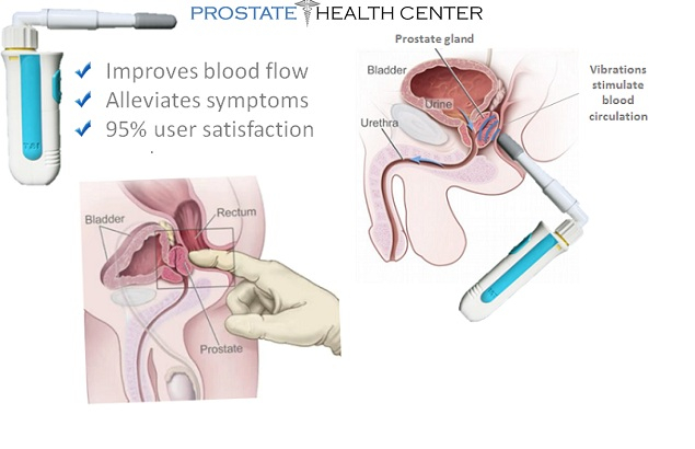 porr 6 prostata massage